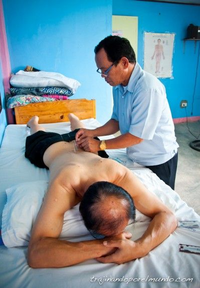 acupuntura-moxibustion-filipinas